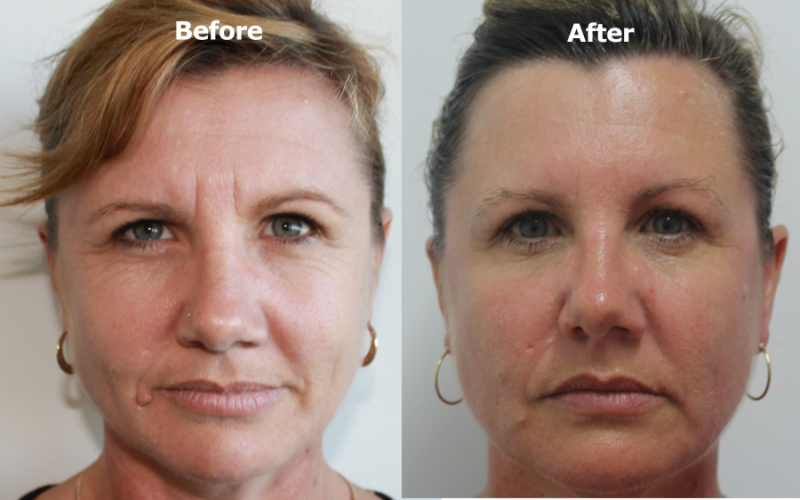 IPL Photorejuvenation, Skin Perfection, Removes Age spots and freckles