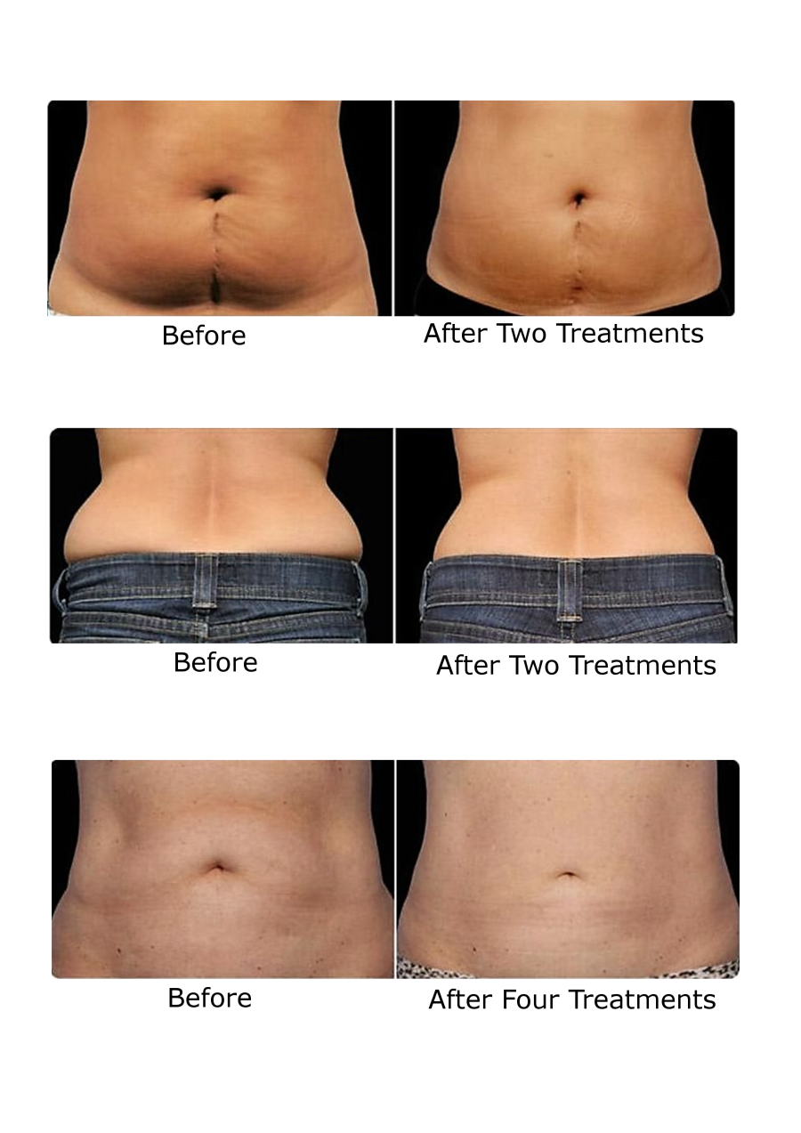 Lipo-Laser Fat Cavation Weight Loss