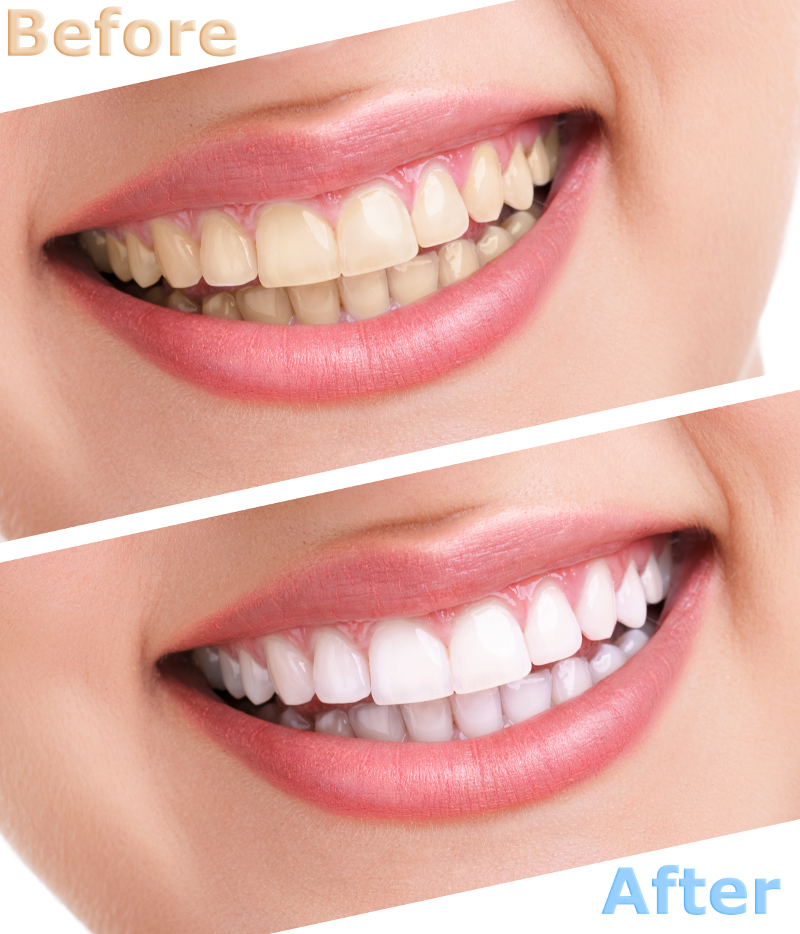 Teeth Whitening Beautiful Smile White Teeth
