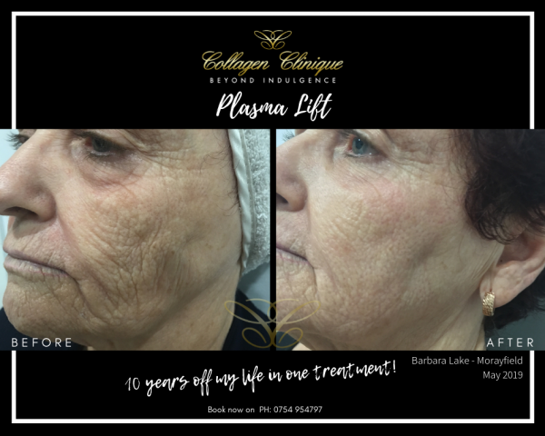 before after plasma lift