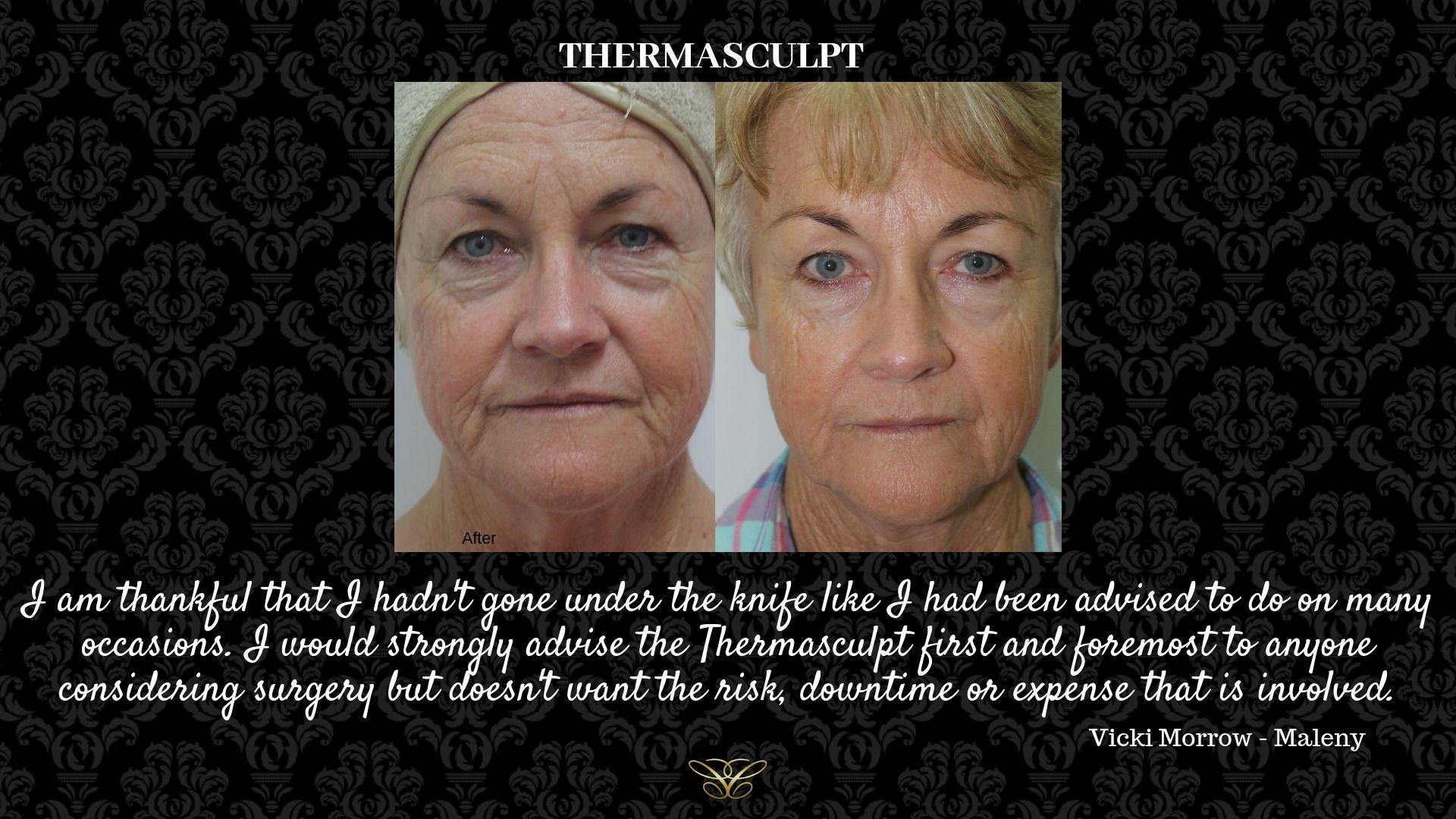 _thermasculpt Vicki Testimonial (1)