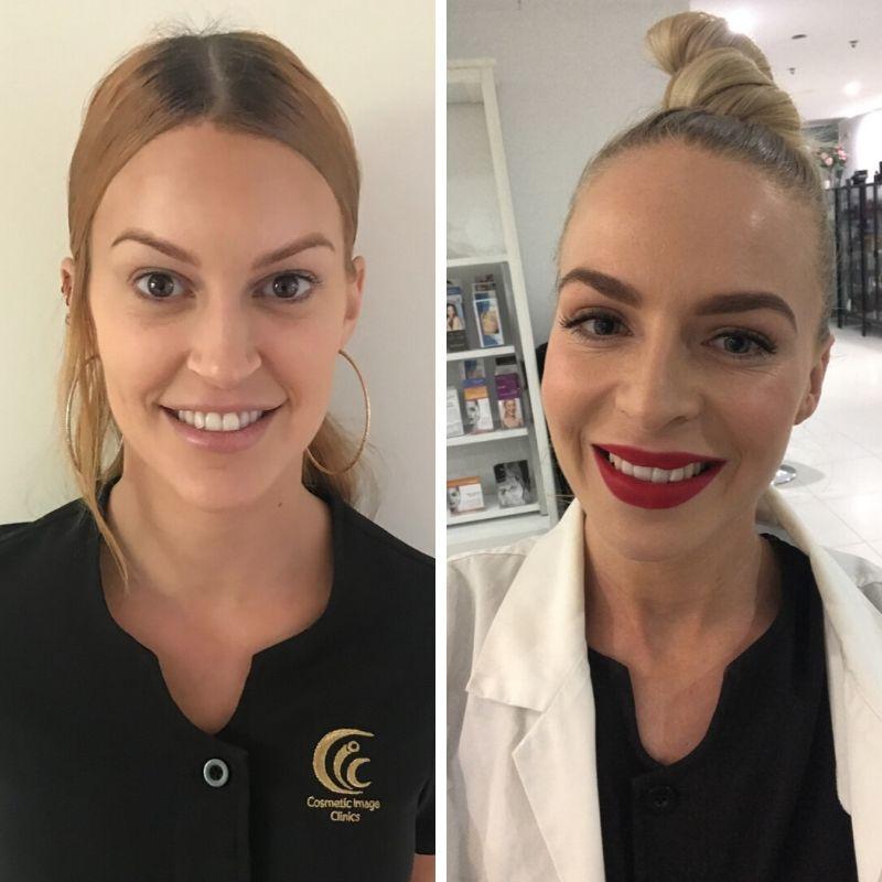 Cosmetic injections, dermal fillers, registered nurse, botox