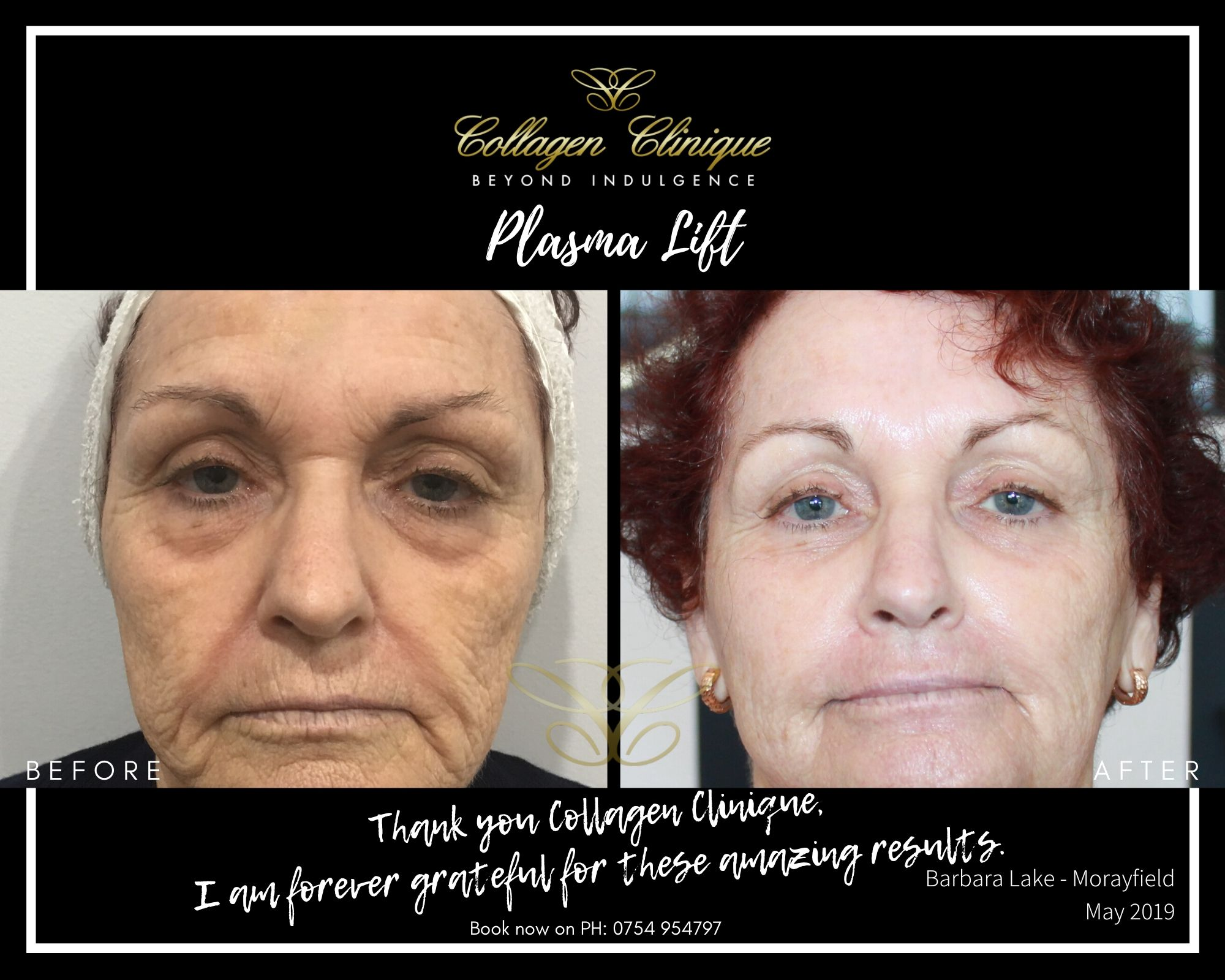 Plasma Pen Lift Fibroblast Non Surgical Facelift Treatment Before and After Barb